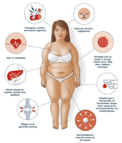 Nadelen en ongemakken van overgewicht